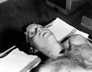 Kennedy's body on autopsy table at Bethesda