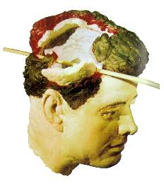Robert Groden version of Kennedy head wound